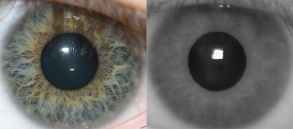 szemgolyok